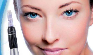 фракционная мезотерапия кожи лица эффективность фото