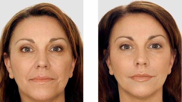 фракционная мезотерапия кожи лица отзывы косметологов