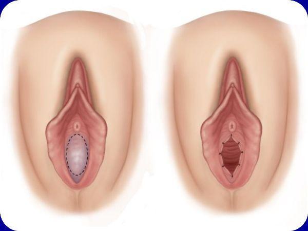 Рефлорация гименопластика где можно сделать отзывы