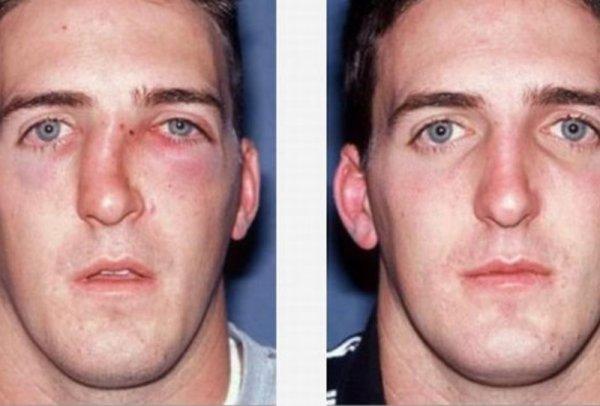 Операция по исправлению носовой перегородки лазером цена