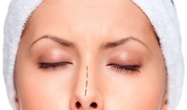 Эффективность операции по выпрямлению искривления носовой перегородки