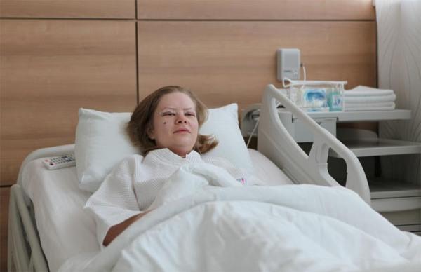 Сколько длится реабилитация после круговой блефаропластики
