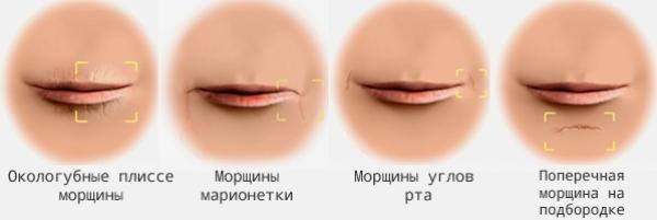 Контурная пластика губ гиалуроновой кислотой отзывы