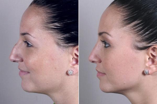 Коррекция кончика носа филлерами