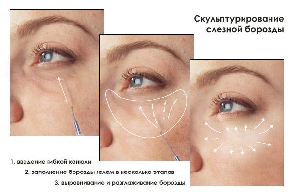 Коррекция носослезной борозды филлерами отзывы