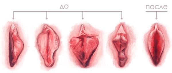 Коррекция половых губ фото до и после