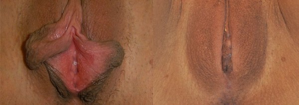 Операция по коррекции половых губ