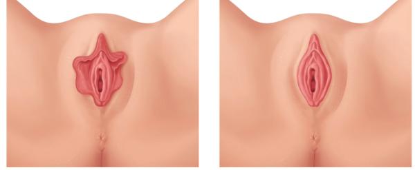 Коррекция половых губ у женщин