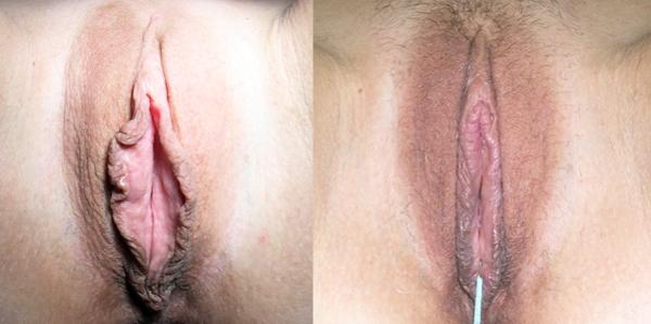 Лабиопластика до и после фото