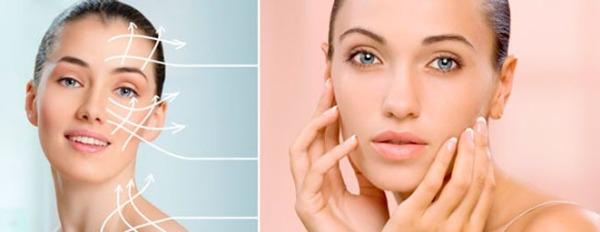 Лазерная биоревитализация кожи лица гиалуроновой кислотой цены