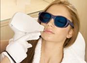 Эффективность лазерного удаления волос на лице