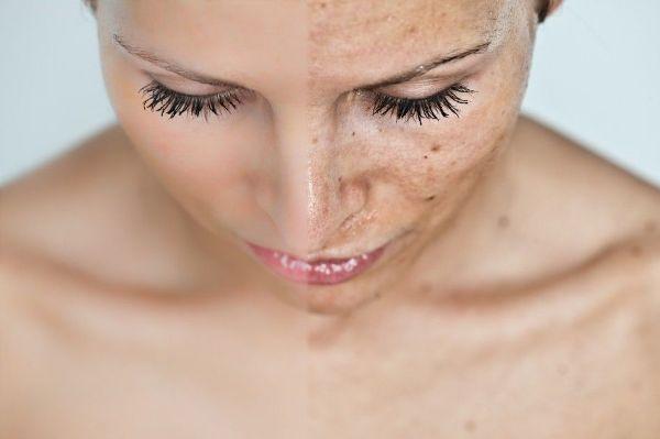 Лазерное удаление волос на лице навсегда цена