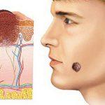 Каким методом можно удалять родинки на лице