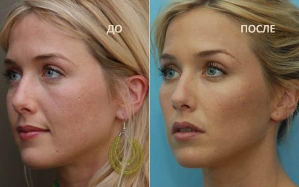 Скулы филлерами фото до и после отзывы