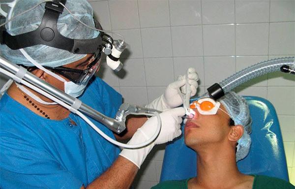 Операция по исправлению носовой перегородки лазером отзывы