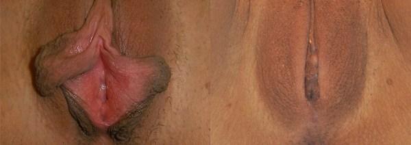 Фото до и после операции