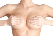Пластическая операция по увеличению груди