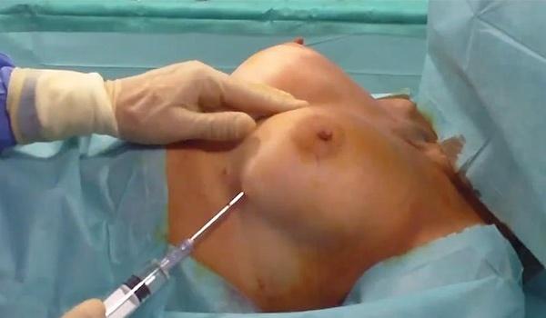 Подтяжка грудных желез без имплантов филлерами