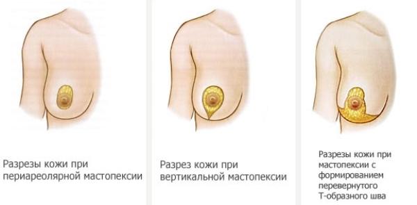 Подтяжка грудных желез без имплантов фото цена