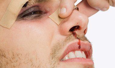 Тактика проведения репозиции костей носа