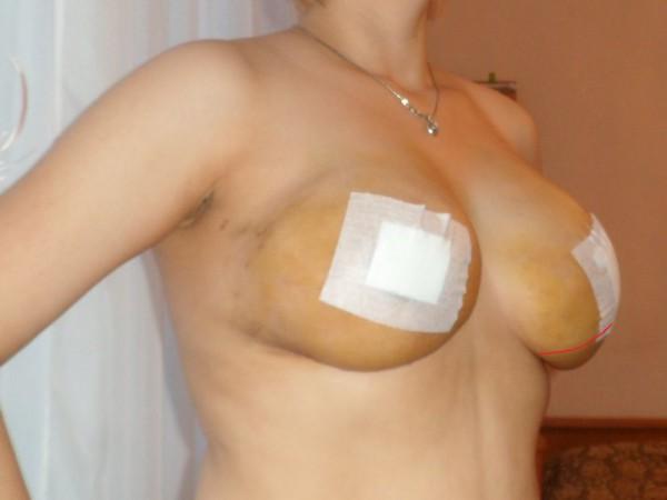 Период реабилитации после маммопластики под мышцу по дням