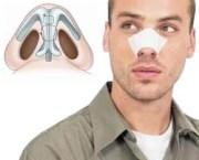 Отзывы о септопластике носовой перегородки