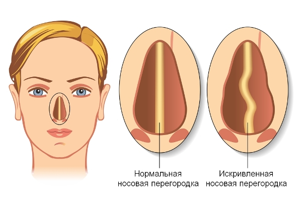 Септопластика носовой перегородки отзывы после операции последствия