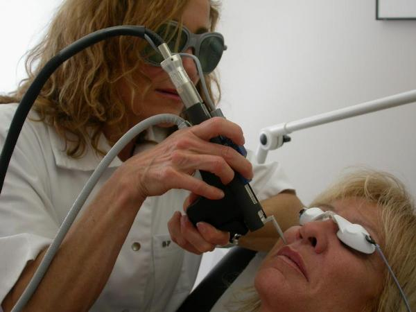Сколько стоит лазерное удаление волос на лице