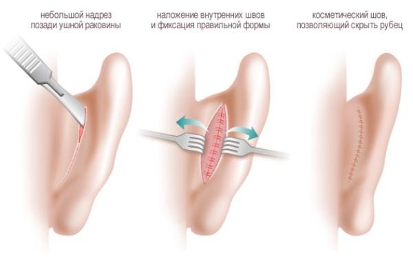 Сколько стоит операция чтобы уши не торчали