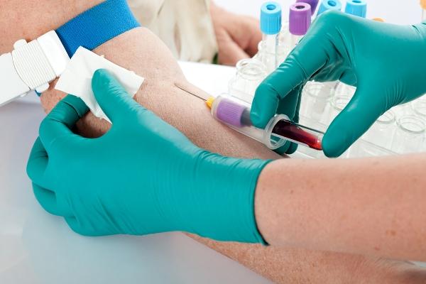 Трансконъюктивальная блефаропластика нижних век осложнения