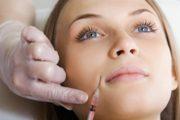 Как убрать носогубные складки гиалуроновой кислотой