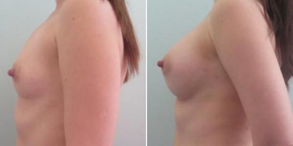 Увеличение груди жиром цена