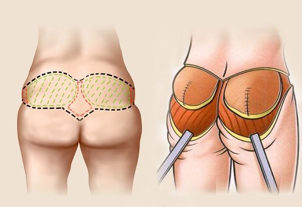 Увеличение ягодиц имплантами отзывы