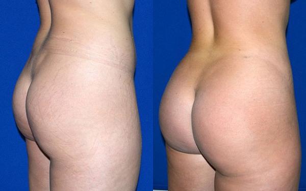 Увеличение ягодиц имплантами фото до и после