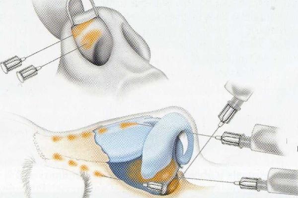 Безоперационная ринопластика носа филлером отзывы