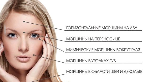 Что лучше ботокс или релатокс отзывы косметологов