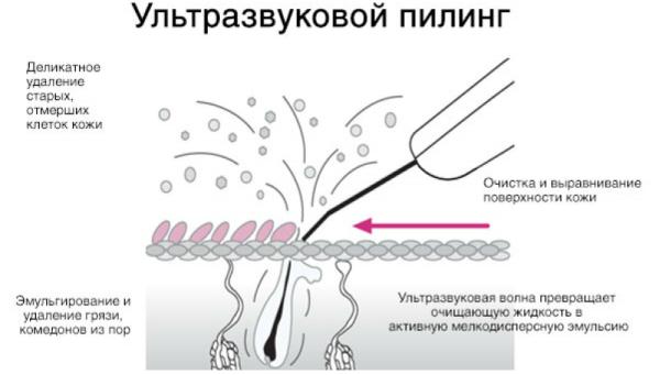 Как действует ультразвук