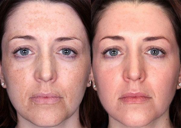 Пилинг с феруловой кислотой фото до и после