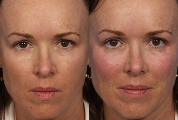 Радиесс в скулы фото до и после реабилитации