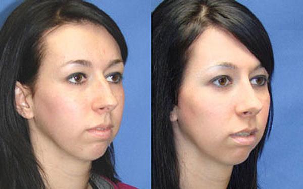 Фото до и после контурной пластики