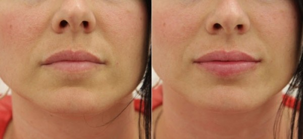 Поднять уголки губ гиалуроновой кислотой техника проведения и фото