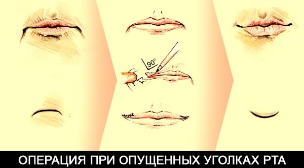 Операция для поднятия уголков губ