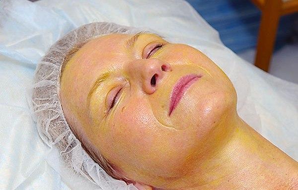 Грыжи под глазами как избавиться без операции химическим пилингом