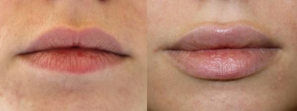 Ювидерм волюма отзывы фото до и после