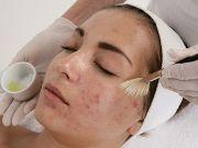 Лечение постакне на лице
