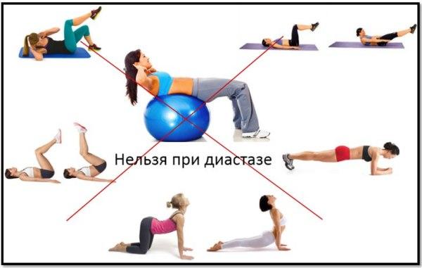 Расхождение прямых мышц живота после родов фото
