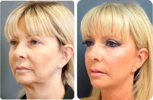 Круговая подтяжка лица фото до и после