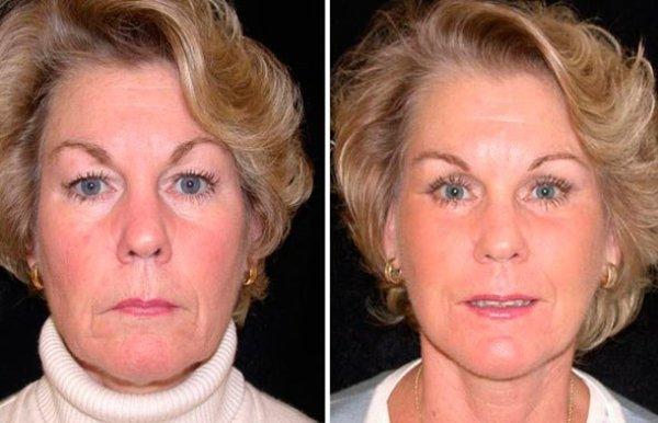 Круговая подтяжка лица без операции