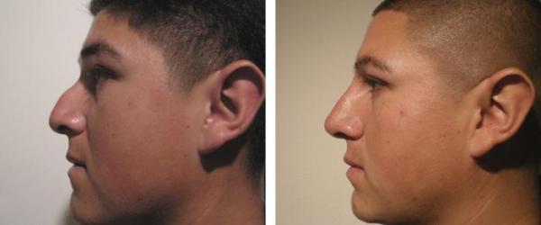 Фото до и после выравнивания горбинки