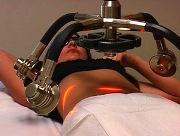 Отзывы о лазерной липосакции живота